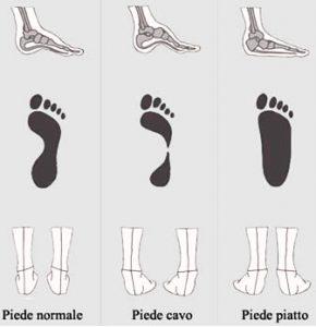 Difetti dei piedi e postura