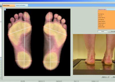 podoscanner2D - esame postura dei piedi
